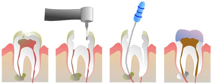 root canal therapy burnaby dentist